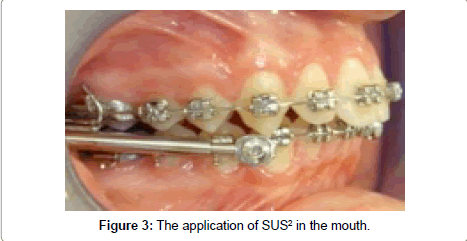 dentistry-application-mouth