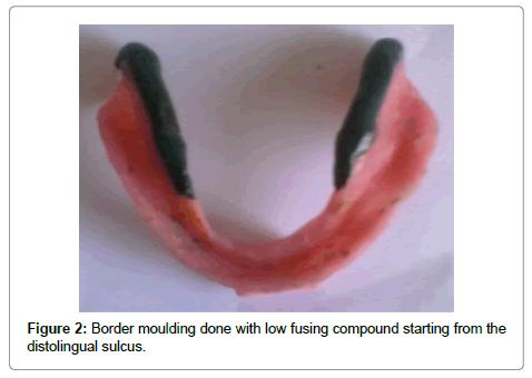 dentistry-border-moulding
