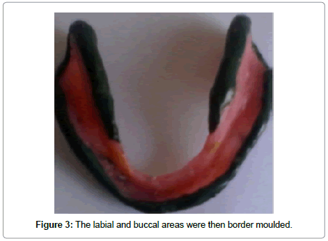 dentistry-buccal-areas