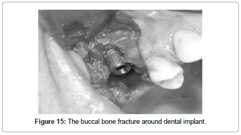 dentistry-buccal-bone-fracture