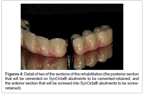 dentistry-cemented-on-SynOcta