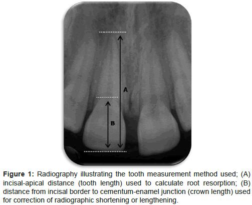 dentistry-cementum-enamel-junction