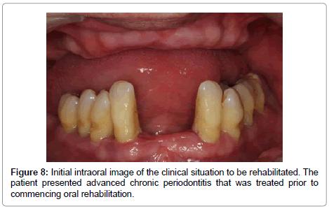 dentistry-chronic-periodontitis