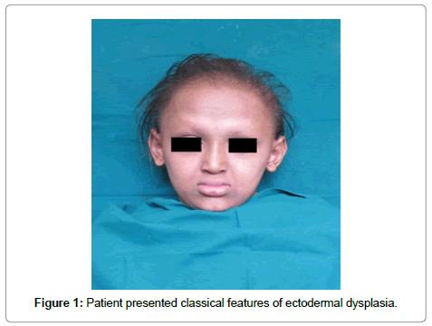 dentistry-ectodermal-dysplasia