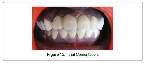 dentistry-final-cementation