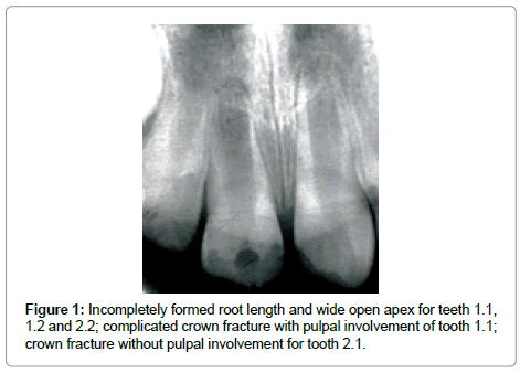dentistry-formed-root-length