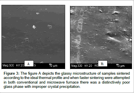 dentistry-glassy-microstructure