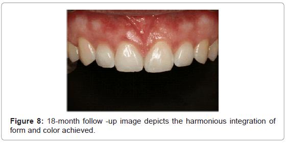 dentistry-harmonious-integration-color-achieved