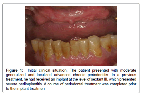 dentistry-initial-clinical-situation