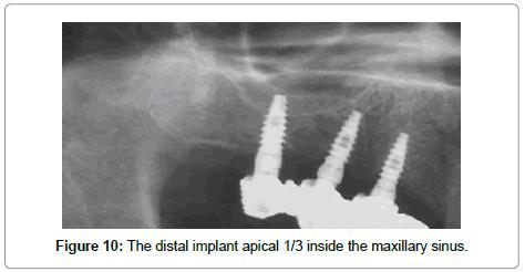 dentistry-inside-maxillary-sinus