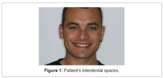 dentistry-interdental-spaces