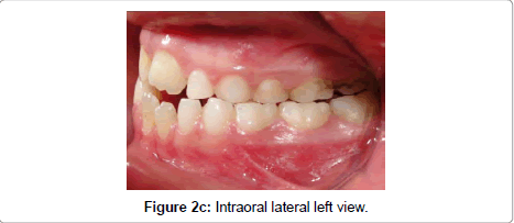dentistry-left-view