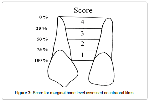 dentistry-marginal-bone-level