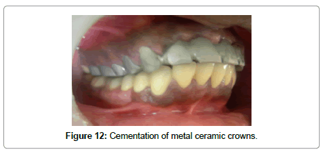 dentistry-metal-ceramic-crowns