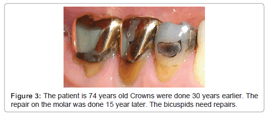 dentistry-old-Crowns