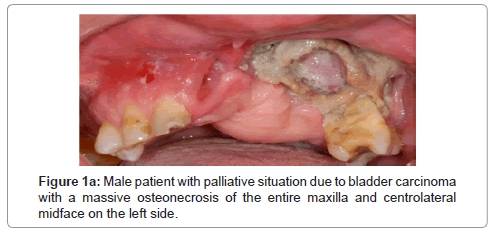 dentistry-palliative-situation