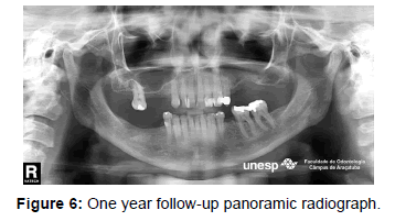 dentistry-panoramic-radiograph