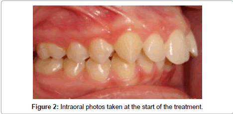 dentistry-photos-taken