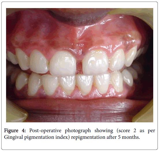 dentistry-pigmentation-index