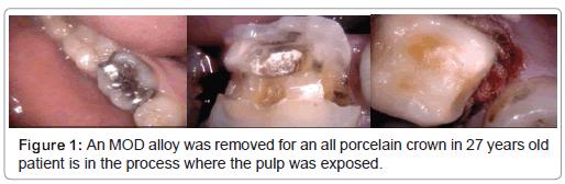 dentistry-porcelain-crown