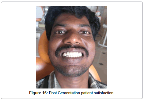 dentistry-post-cementation