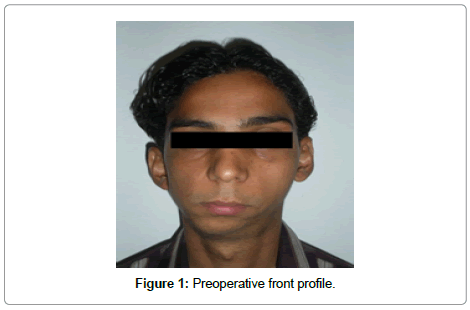dentistry-preoperative-front-profile