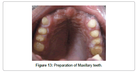 dentistry-preparation-maxillary-teeth