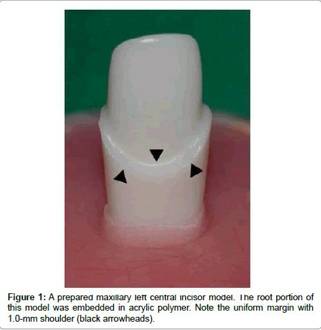 dentistry-prepared-maxillary