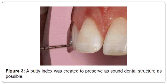 dentistry-putty-index-sound-dental