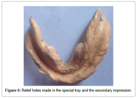 dentistry-relief-holes-made