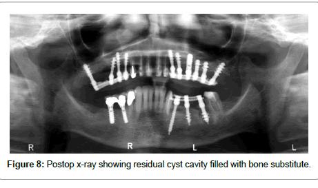 dentistry-residual-cyst