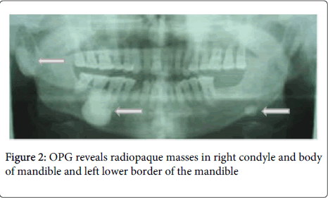 dentistry-reveals-radiopaque
