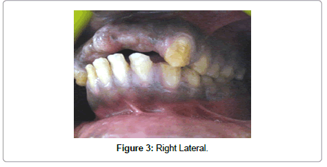 dentistry-right-lateral