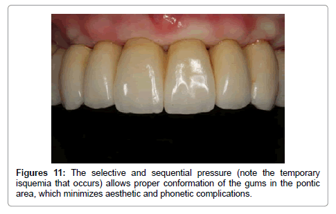 dentistry-sequential-pressure