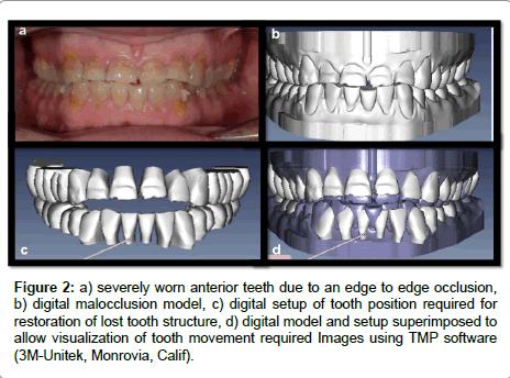dentistry-severely worn