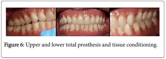 dentistry-tissue-conditioning