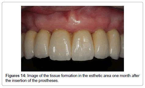 dentistry-tissue-formation