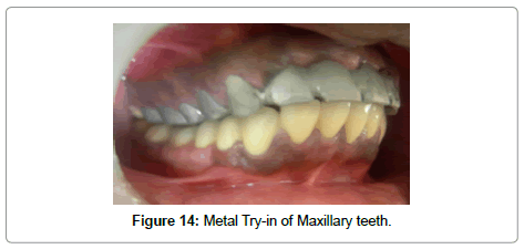 dentistry-try-in-maxillary-teeth