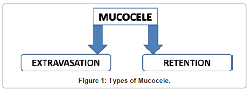 dentistry-types-of-mucocele