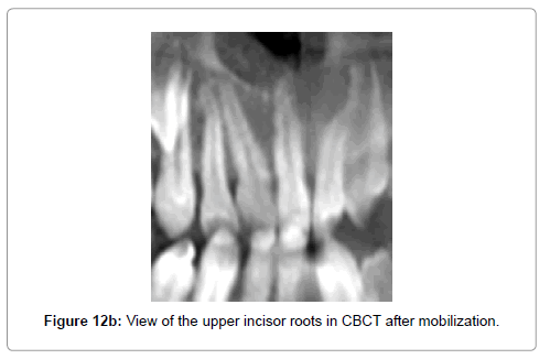 dentistry-upper-incisor-roots