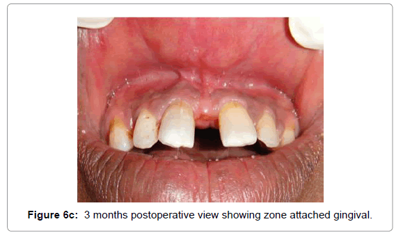 dentistry-zone-attached-gingival