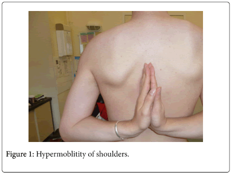 depression-and-anxiety-Hypermoblitity-shoulders