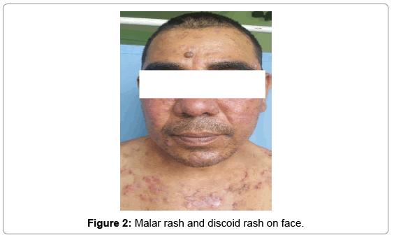 dermatology-case-reports-Malar-rash