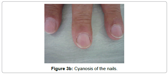 developing-drugs-Cyanosis-nails