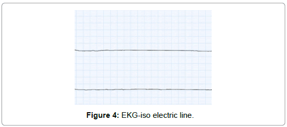 developing-drugs-EKG-iso-electric