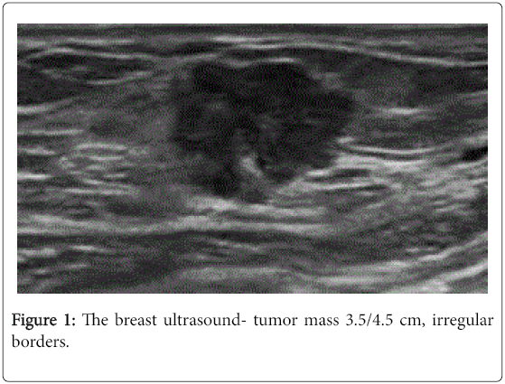 developing-drugs-breast-ultrasound-tumor