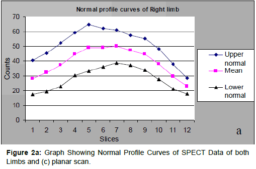 diabetes-metabolism-Graph-Showing-Normal-Profile-Curves