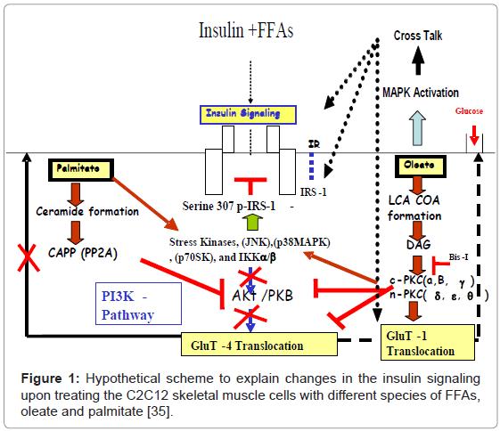 diabetes-metabolism-Hypothetical-scheme
