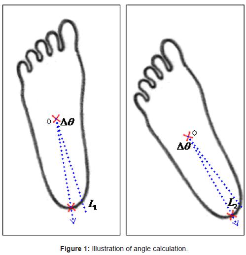 diabetes-metabolism-Illustration-angle-calculation