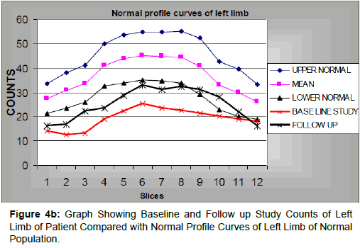 diabetes-metabolism-Normal-Profile-Curves-Left-Limb